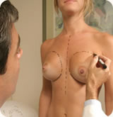 Mastopexy (Breast Lift Surgery)